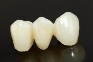 dental bridges fredericksburg