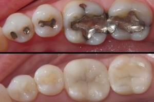 tooth fillings fredericksburg