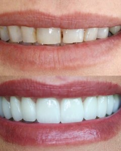 cosmetic dentist fredericksburg